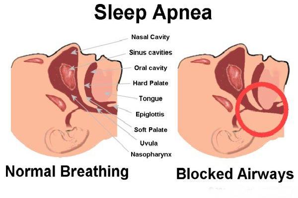 sleep-apnea-difficulty-sleeping