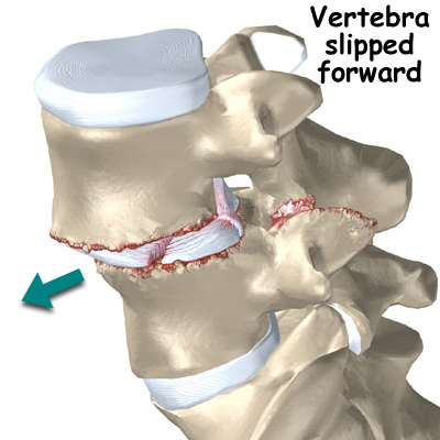 spondylothesis grade 2 symptoms Learn more about spondylolisthesis treatments, the types of surgeries to treat spondylolisthesis, its symptoms and more from the cleveland clinic.