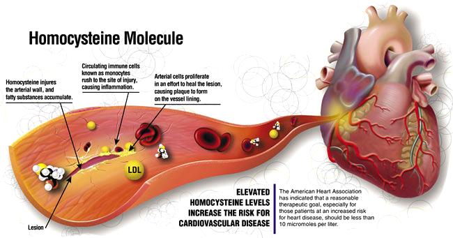homocysteine-test