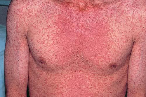 Pictures of Viral Skin Diseases and Problems - Measles