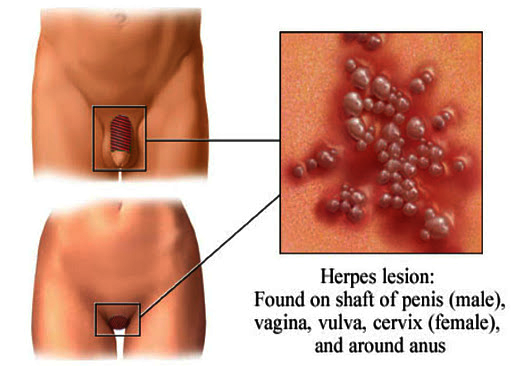 I've got genital herpes (HSV 1) 1