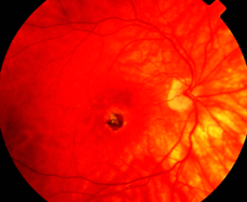 type of cataract caused by steroids