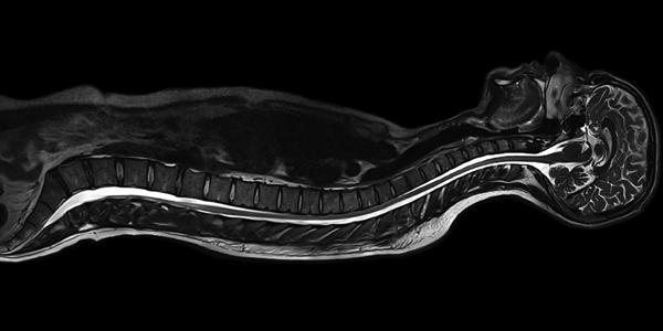 MRI Scan Test in India