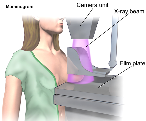 mammography-test
