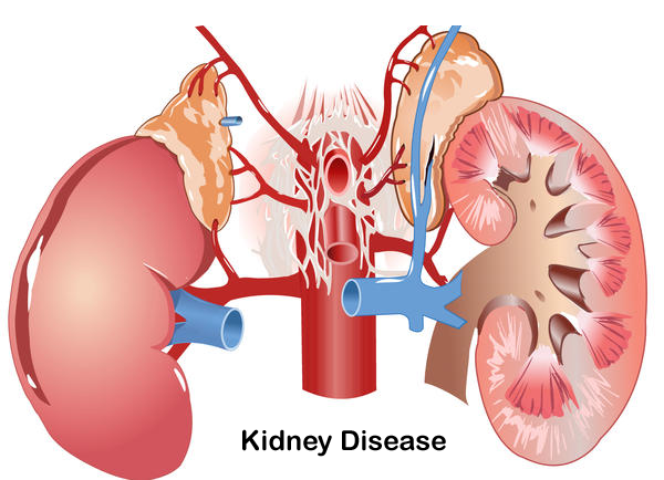 Why Do Dialysis Patients Need to Limit Potassium?