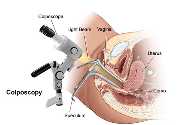 Vaginal cancer and microscopy