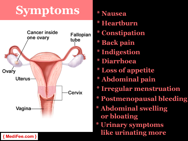 Things You Must Know About Ovarian Cancer And Tests For It