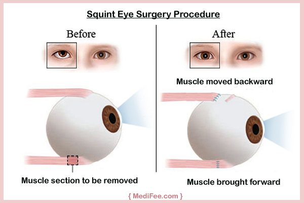 squint-eye-surgery-procedure-in-India