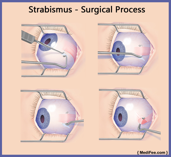 surgical-process-for-squint-eye-in-india
