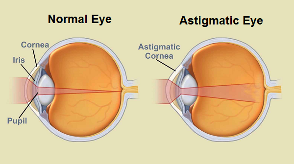 Laser Eye Treatment in India - Risks, Cost and Procedure