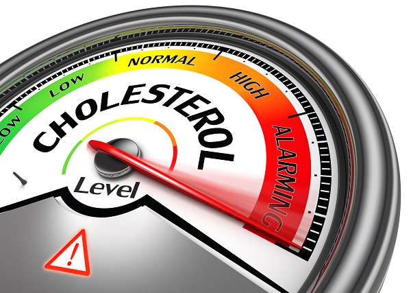 cholesterol-test-for-women