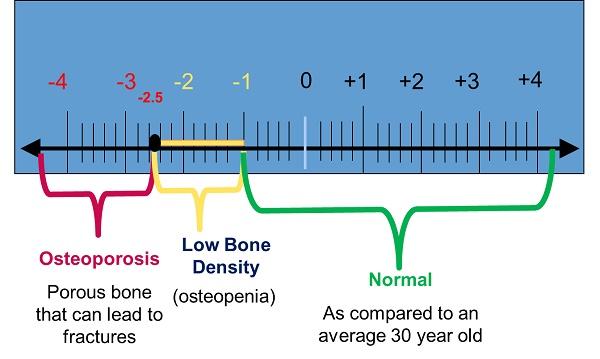 Bone-test-T-score-in-India