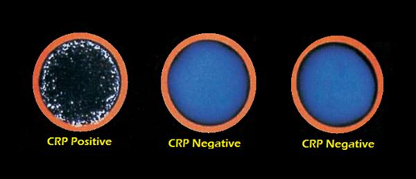 CRP-test