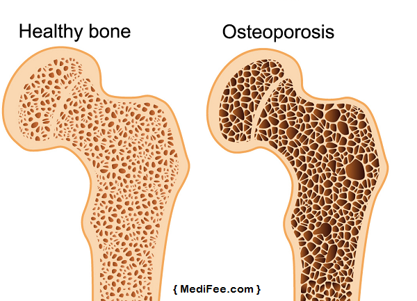 Pictures of how to prevent osteoporosis
