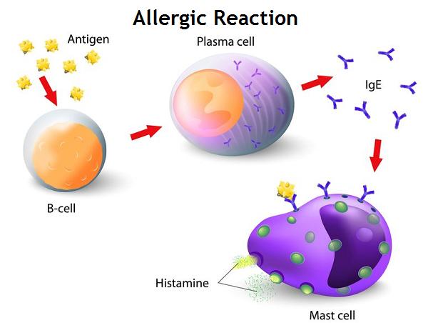 Blood Test: Allergen-Specific Immunoglobulin E (IgE)