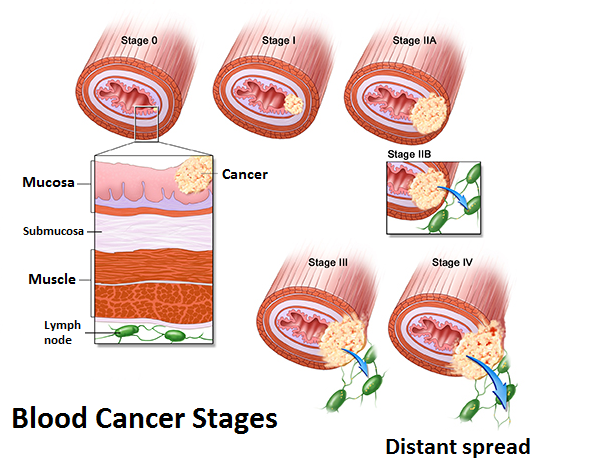 types of cancer treatment pdf