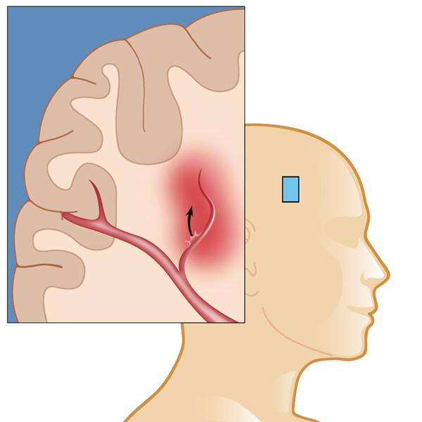 brain-hemorrhage-in-India