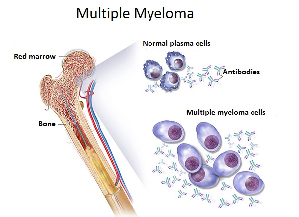 plasmacytoma and multiple myeloma Original article from the new england journal of medicine — plasmacytoma of  lymph node — report of a case with multiple myeloma.