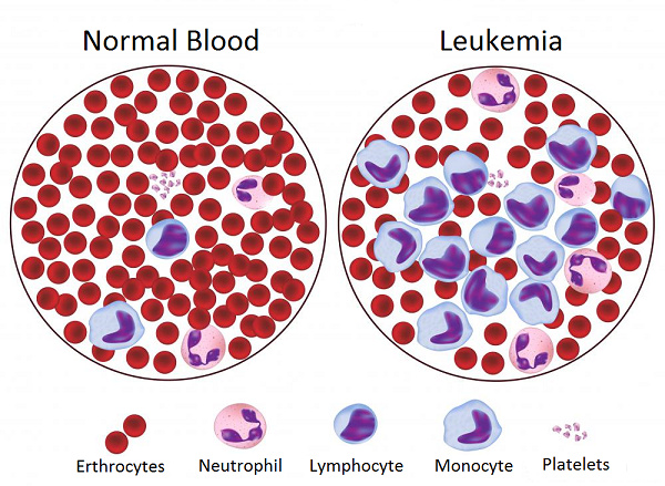 blood cancers There are more than 100 types of cancer types of cancer are usually named for the organs or tissues where the cancers form, but they also may be described by the.