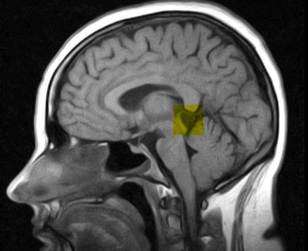 pineal-gland-cyst