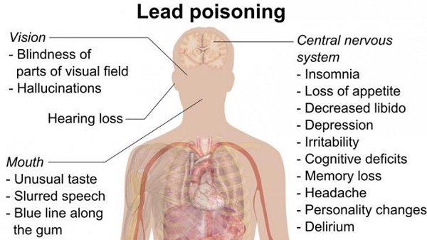 Lead Poisoning Disorders