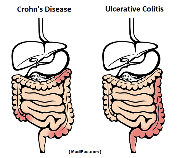 inflammatory bowel disease crohns disease Ulcerative colitis and crohn's disease are the two main forms of inflammatory bowel diseases they are both conditions characterized by chronic inflammation of the digestive tract although they share many similarities, there are key differences between the two diseases.