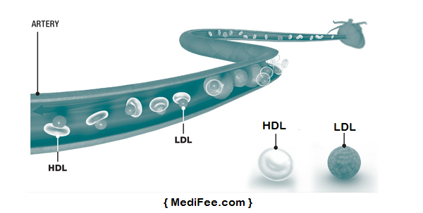 types-of-cholesterol-HDL-LDL