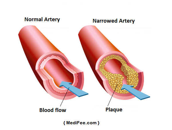 plaque-buildup-artery-cholesterol