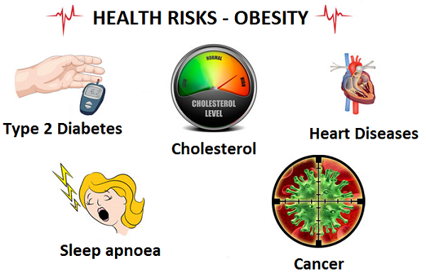 risk of being an obesity