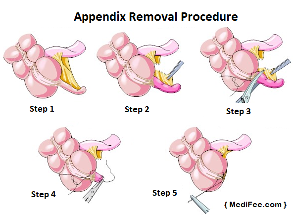appendectomy appendicitis and appendix the appendix Appendicitis, or inflammation of the appendix, has many different causes pain in the abdomen is the most common symptom of appendicitis, but you also may experience.