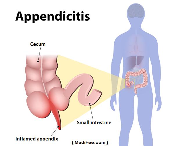 inflamed-appendix