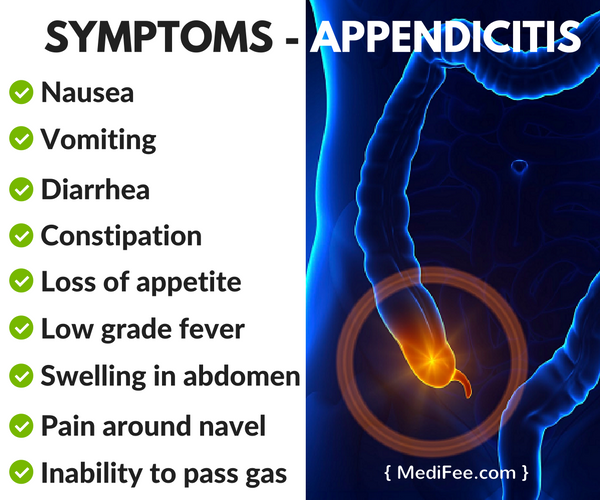 appendicitis - symptoms, causes and treatment procedure, Human Body