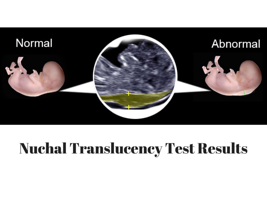 Nuchal-Translucency-Test-Results