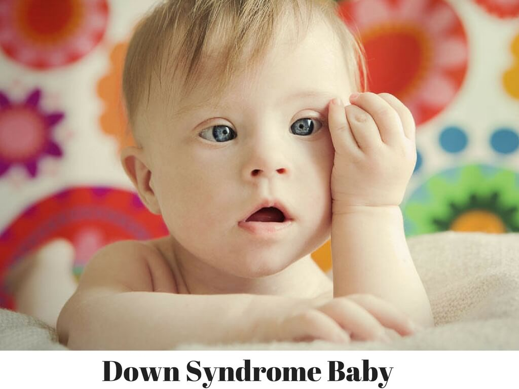 Down-Syndrome-Baby