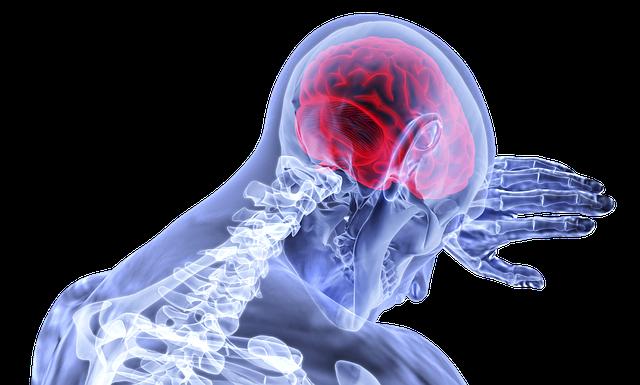 Symptoms of Migraine