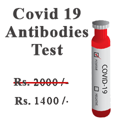 Covid Antibodies Test
