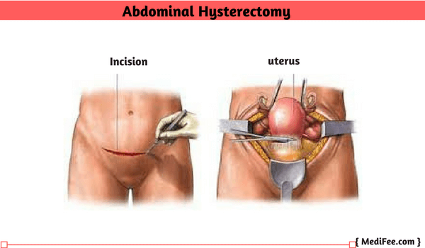 Uterus Removal Surgery Hysterectomy Full Procedure Risks And Complications