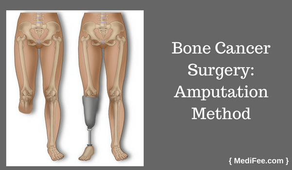bone cancer amputation surgery method