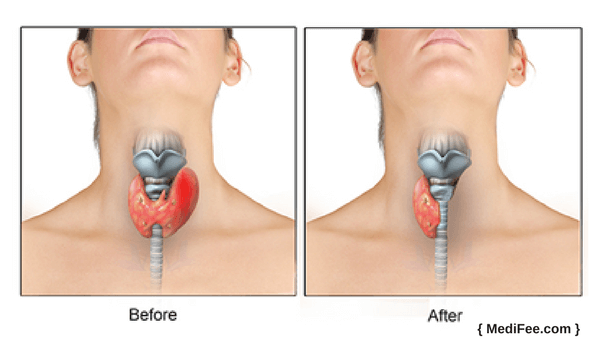 Thyroid Cancer Surgery  Procedure  Risks And Associated