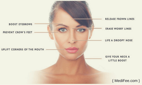 cosmetic treatment with botox