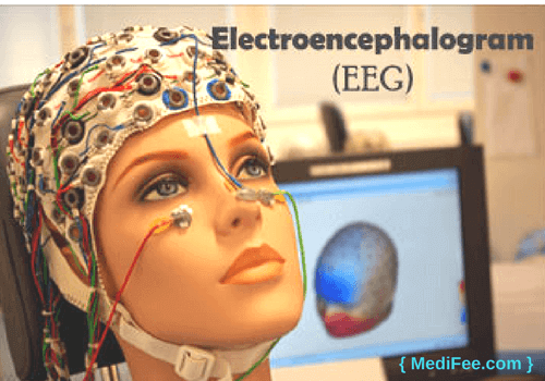 Brain Mapping Electroencephalography (EEG).png