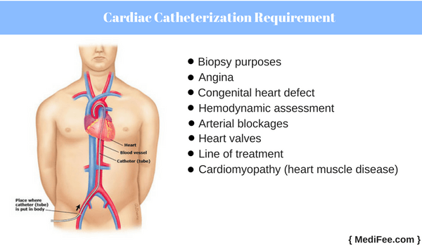 why is cardiac catheterization required