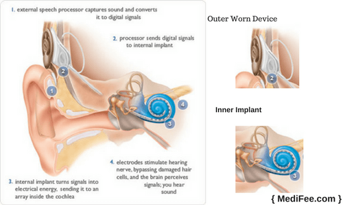 what is cochlear implant