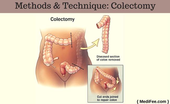Colorectal Cancer Treatment Surgery Procedure Preparation Risks And Complications