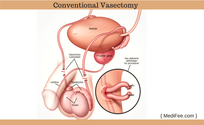 Extract sperm after vasectomy
