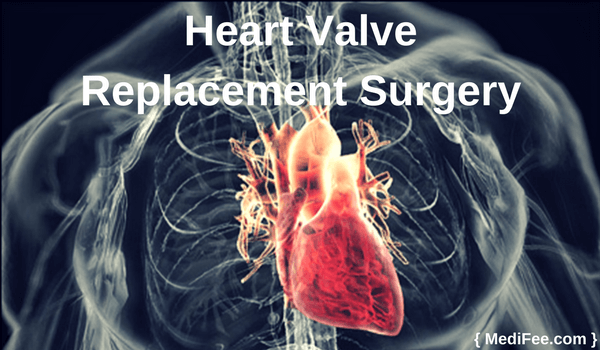 surgery for heart valve replacement
