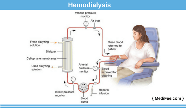 Method of dialysis: hemodialysis