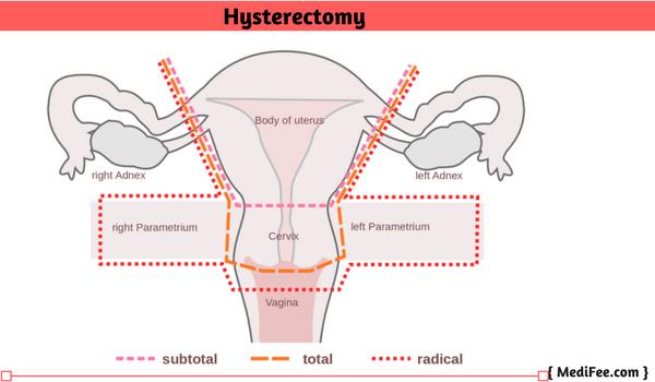 Postpartum vaginal itching