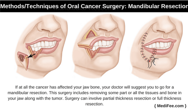 mandibular resection