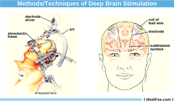 deep brain stimulation methods